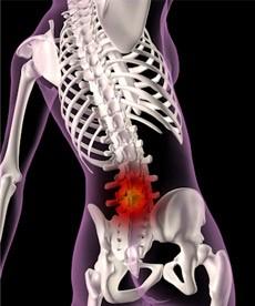 腹圧を高め骨盤を矯正