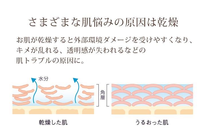 さまざまな肌悩みの原因は乾燥