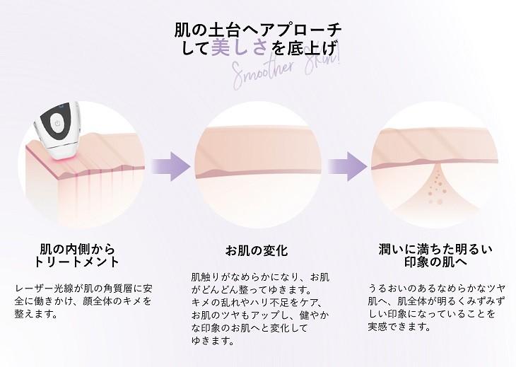 肌の変化のプロセス