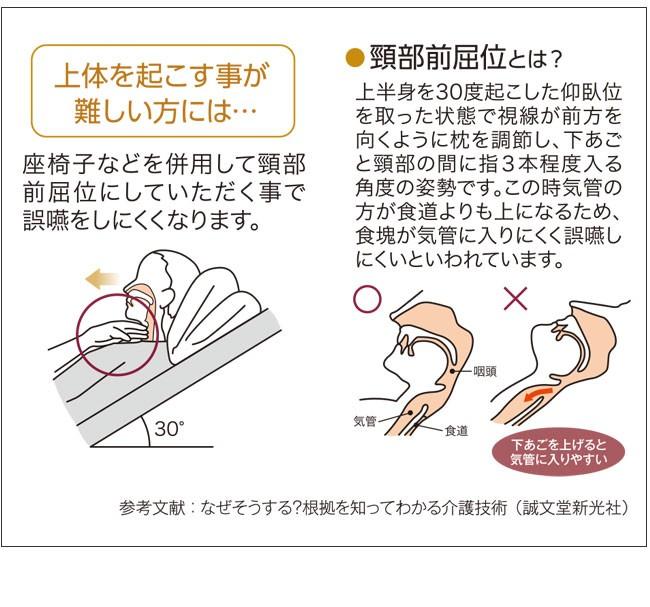 状態を起こすことがむずかしい方に。座椅子などを併用して頚部前屈位にしていただくことで誤嚥をしにくくなります。頚部前屈位とは、上半身を30度起こした仰臥位を取った状態で視線が前方を向くように枕を調節し、下あごと頚部の間に指3本程度入る角度の姿勢です。この時気管のほうが食道よりも上になるため、食塊が気管に入りにくく誤嚥しにくいと言われています。