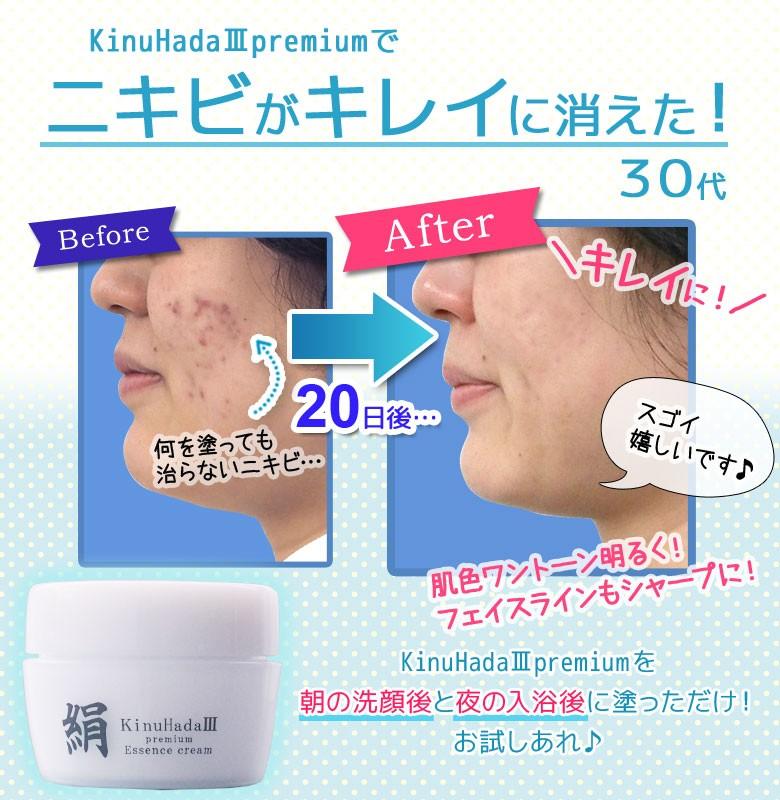 絹-KinuHadaIIIpremium- KinuHada3premium オールインワン美容液