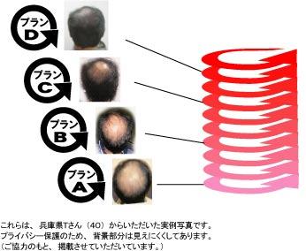 育毛増毛プラン
