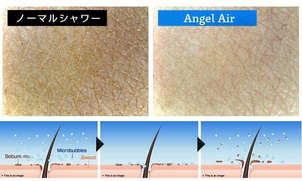 肌表面とマイクロバブルで毛穴の汚れを吸着