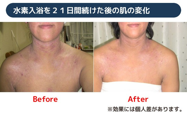 水素入浴を21日間続けた後の肌の変化