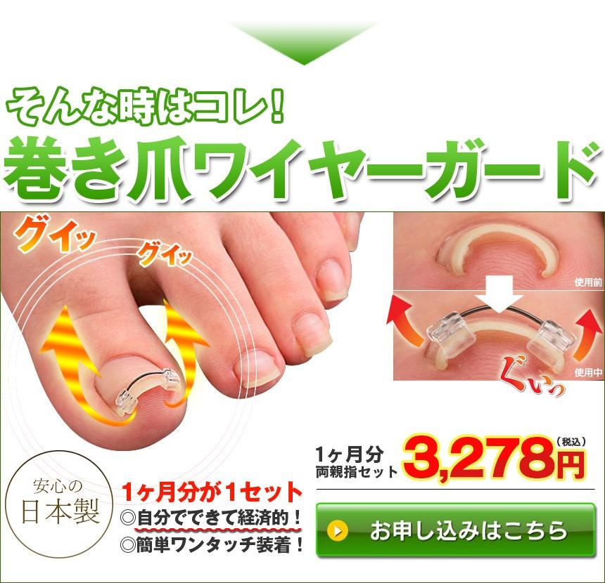 巻き爪ワイヤーガード 1箱セット 1ヶ月分