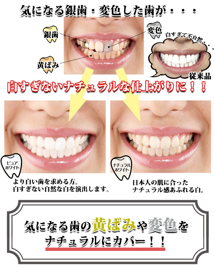 歯のお化粧 デンタルパール